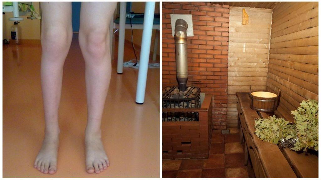 Подагра: симптомы и методы лечения. диета и препараты при подагре.
