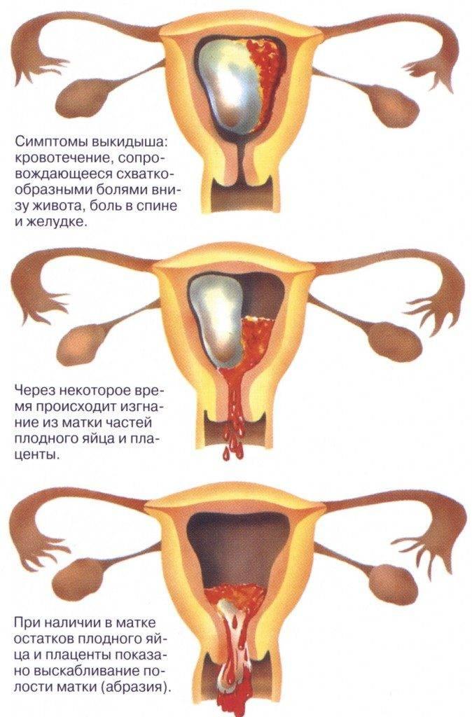 Можно ли ходить в баню при месячных: перед и во время менструации   sh