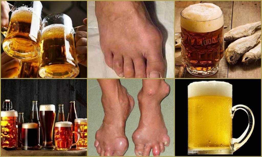 Мифы о простуде. можно ли пить алкоголь, ходить в баню и кормить грудью?   здоровье   аиф барнаул