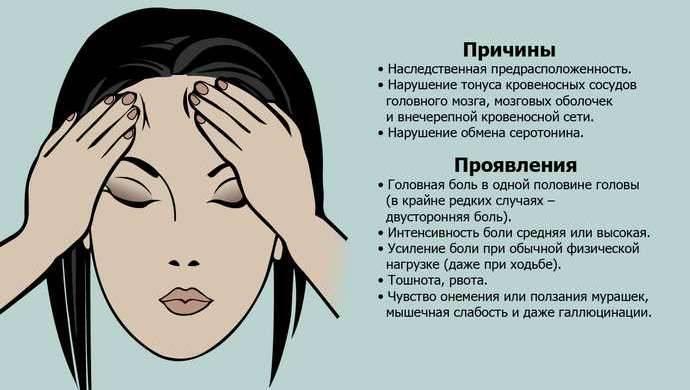 Мигрень с аурой и без – симптомы, лечение, причины, как избежать приступа