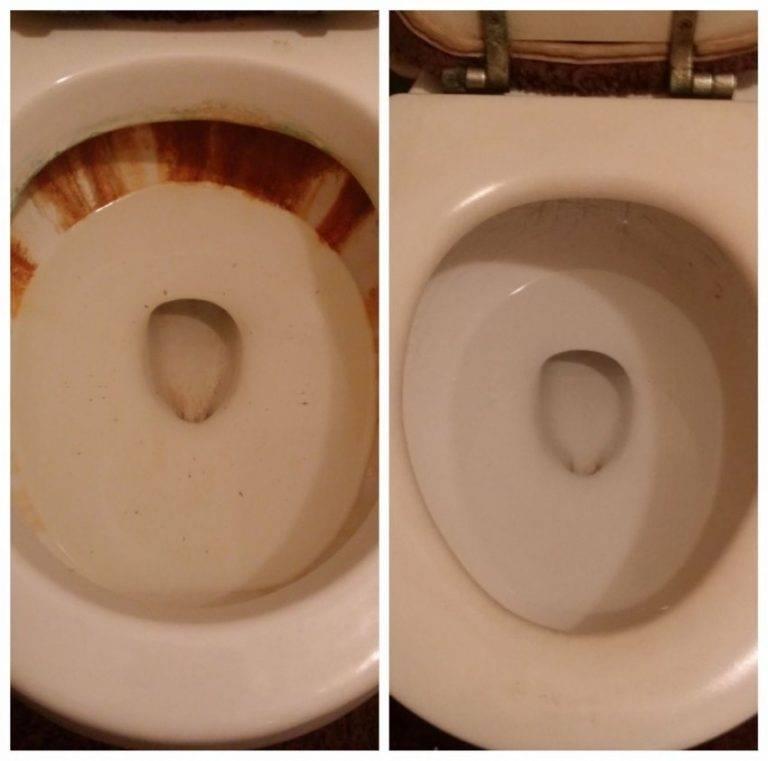 Как очистить унитаз от ржавчины в домашних условиях: самые эффективные средства, отзывы