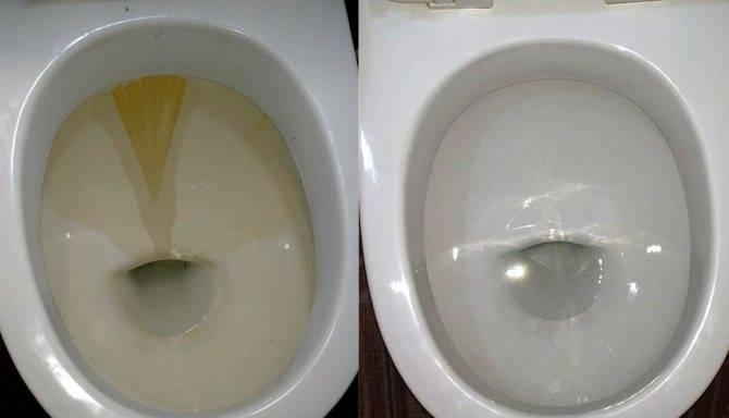 Как очистить унитаз от известкового налета и мочевого камня: чем убрать, удалить, отмыть известь от жесткой воды, лучшие средства